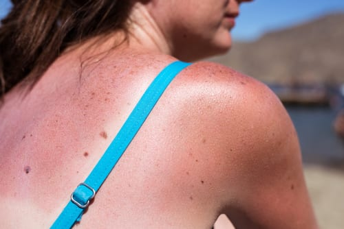 Sunburn from beach sun light on the shoulder and back of caucasian girl-img-blog