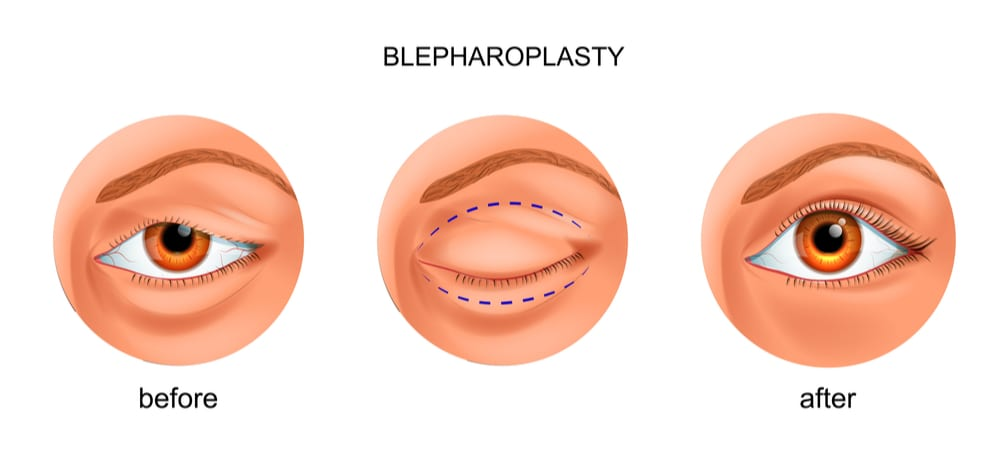 Blepharoplasty infographic of before and after procedure-img-blog