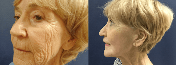 Before and after image showing the results of a Croton Oil Peel.