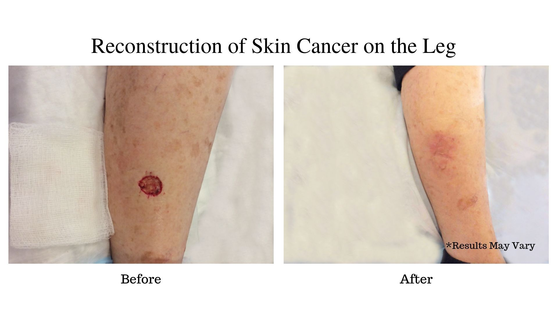Before and after for a woman undergoing reconstruction of skin cancer on her leg in Pasadena, CA.