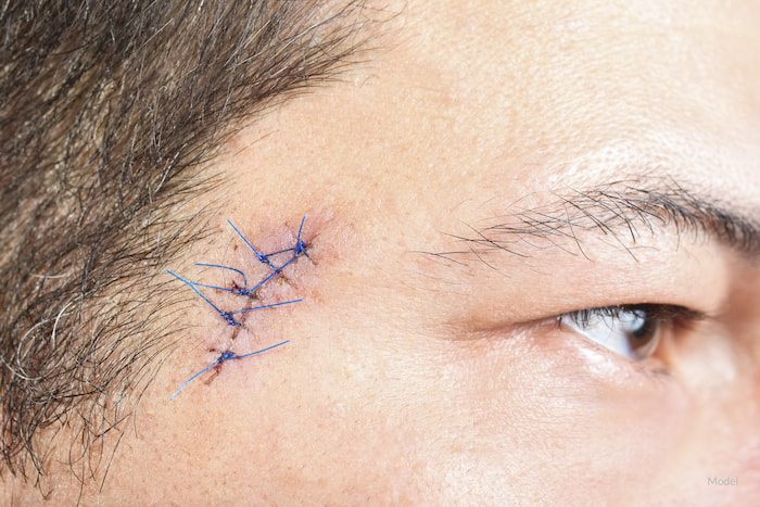 Man with a healing incision after a skin cancer biopsy.