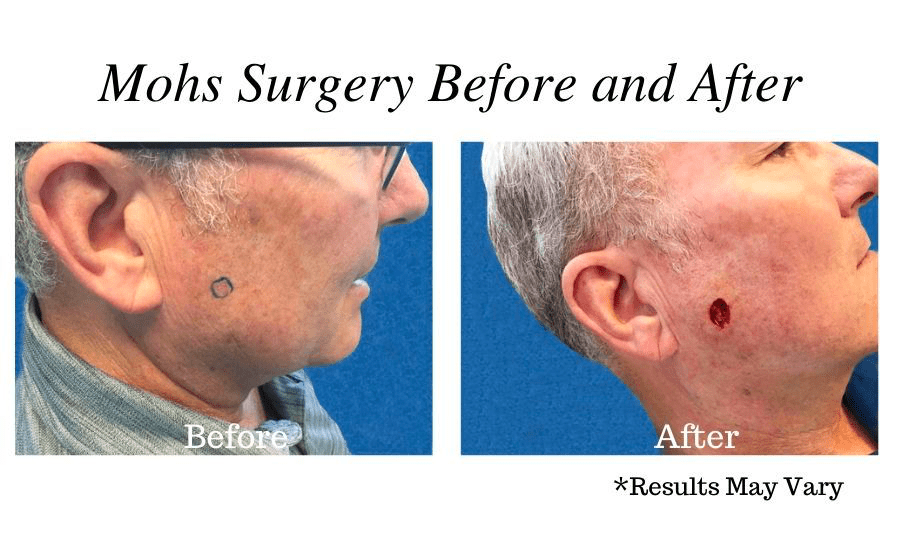 Before and after image showing the results of Mohs Surgery before the reconstruction process in Pasadena, CA.