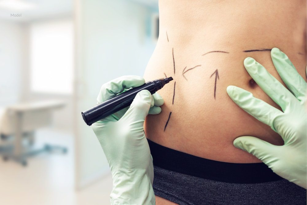 Body contouring like liposuction can smooth your physique after weight loss or pregnancy.